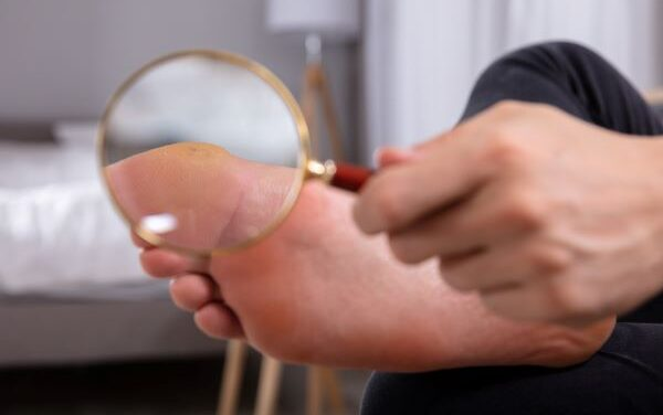 Foot Care Tips for Those With Diabetes